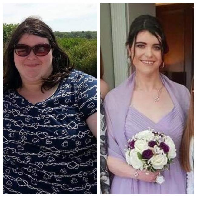 Gemma before and after the weight loss