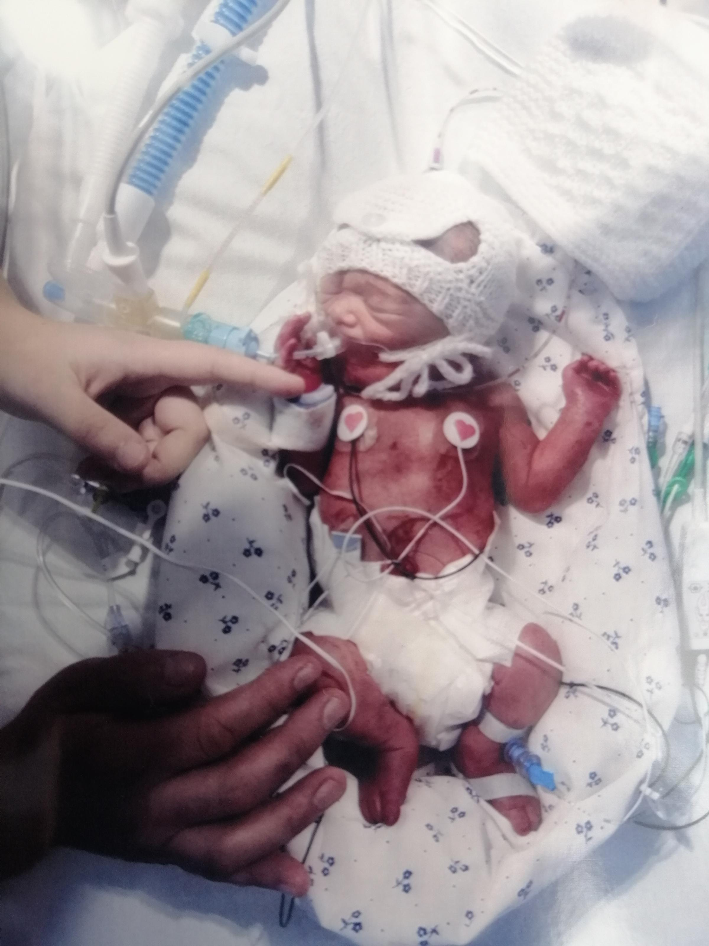 St Helens Star: Alexander Phillip taylorSt HelensBorn 27th August 2020Weighing 3lb 4Alexander was born 12 weeks premature and is still in scbu at whiston