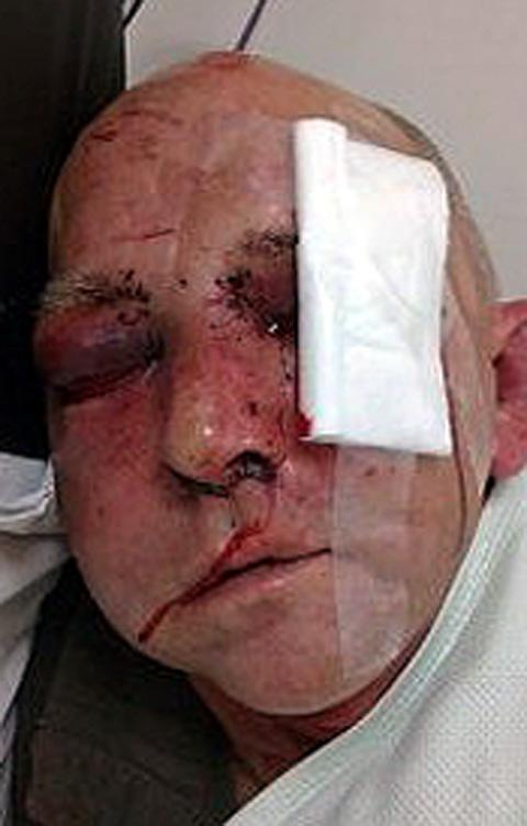 The battered face of Wayne Halliwell who was attacked in Sutton Manor and then dumped in his Clock Face home.