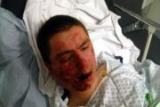 Carl Robinson, 19, lies in hospital with horrific injuries after being attacked by a pack of thugs in the street.