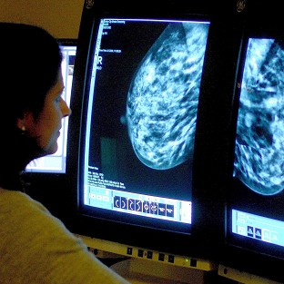 Many women having mastectomies would have been better treated with a lumpectomy, say researchers